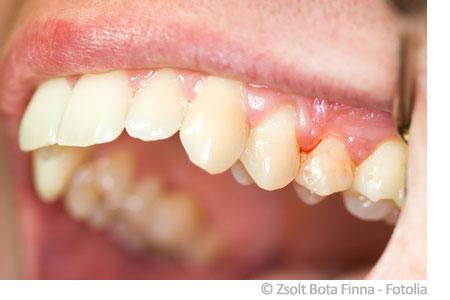 aloe vera zahnfleischbluten zahnpflege